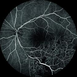 Spectralis Angiografia